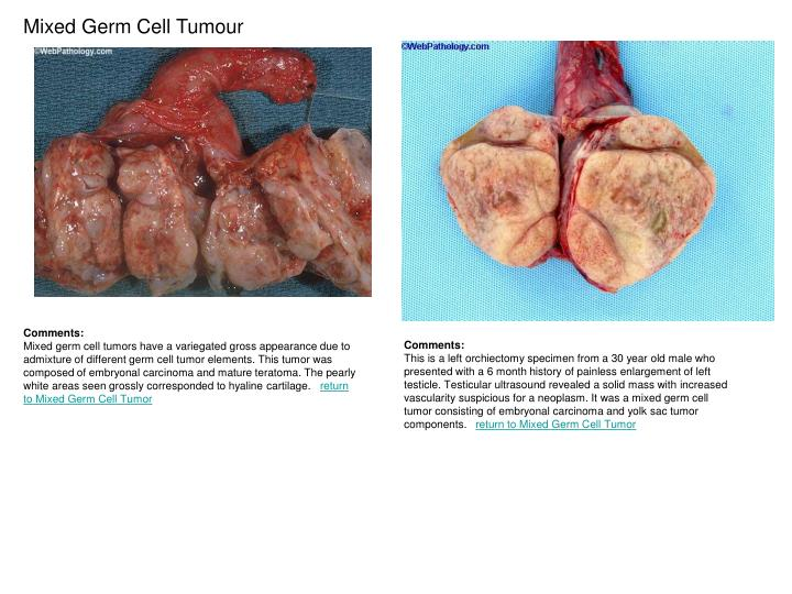 Mixed Germ Cell Tumour