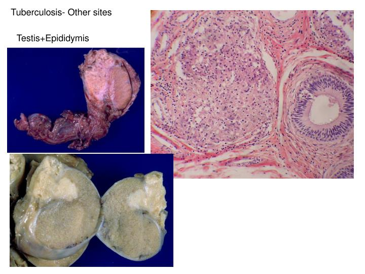 Tuberculosis- Other sites