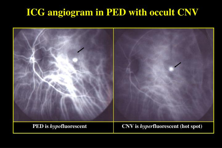 ICG angiogram in PED with occult CNV