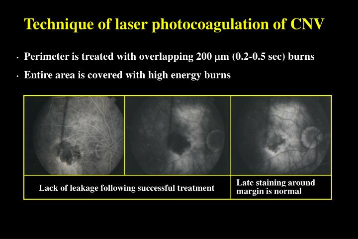 Technique of laser photocoagulation of CNV