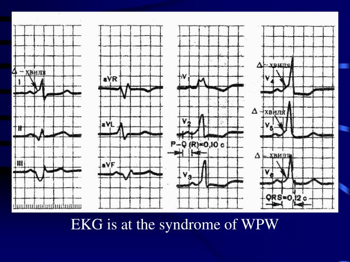 EKG is at the syndrome of