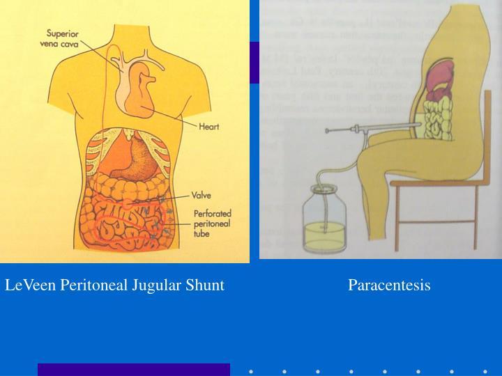 LeVeen Peritoneal Jugular Shunt