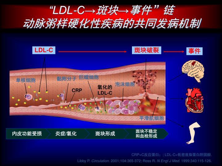"""""""LDL-C→"""