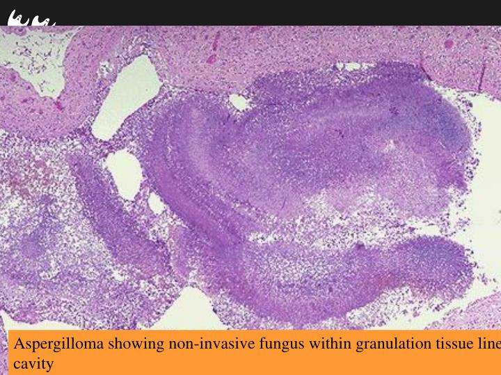 Aspergilloma showing non-invasive fungus within granulation tissue lined