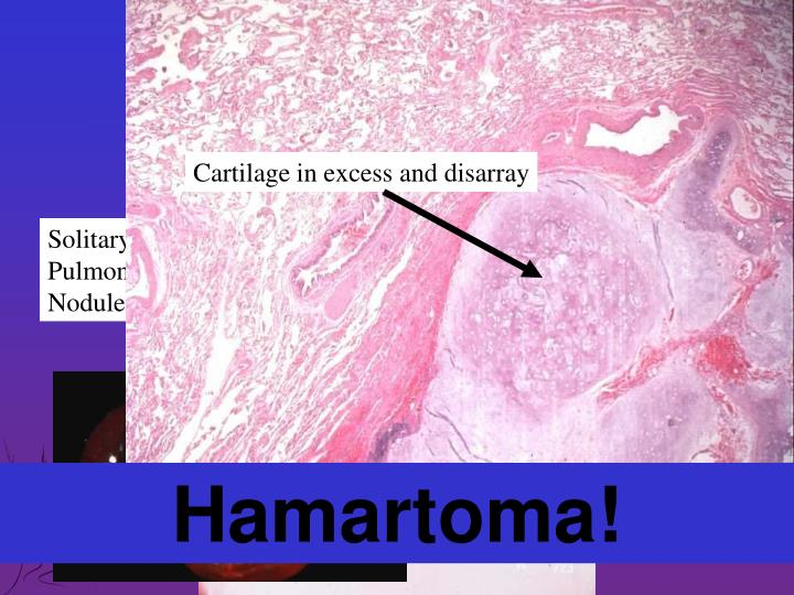 Cartilage in excess and disarray
