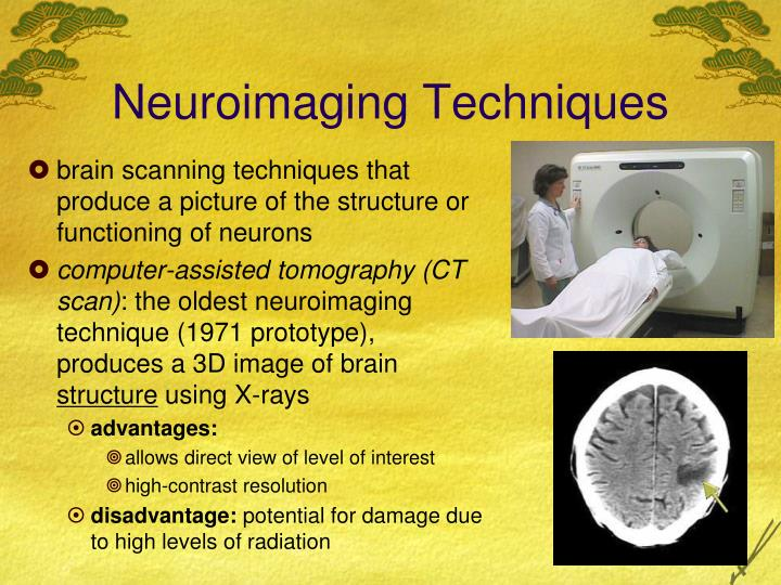 Neuroimaging Techniques