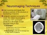 neuroimaging techniques