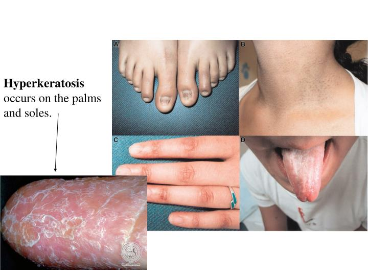 Hyperkeratosis
