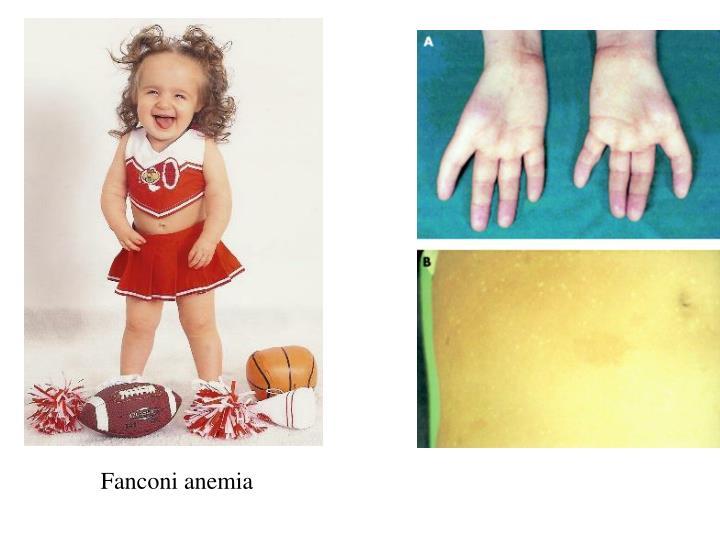 Fanconi anemia