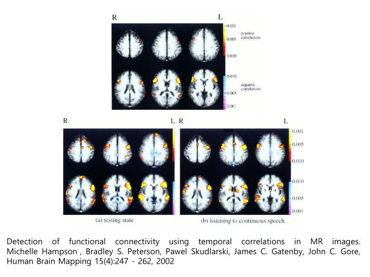 Detection of functional connectivity using temporal correlations in MR images.