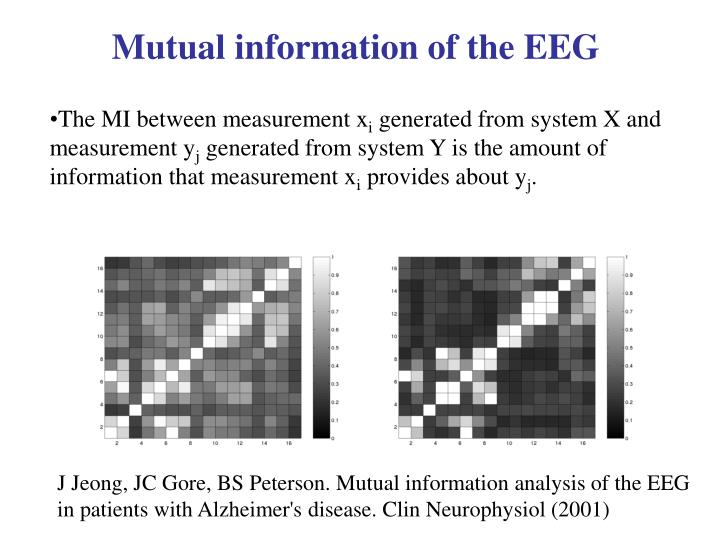 Mutual information of the EEG