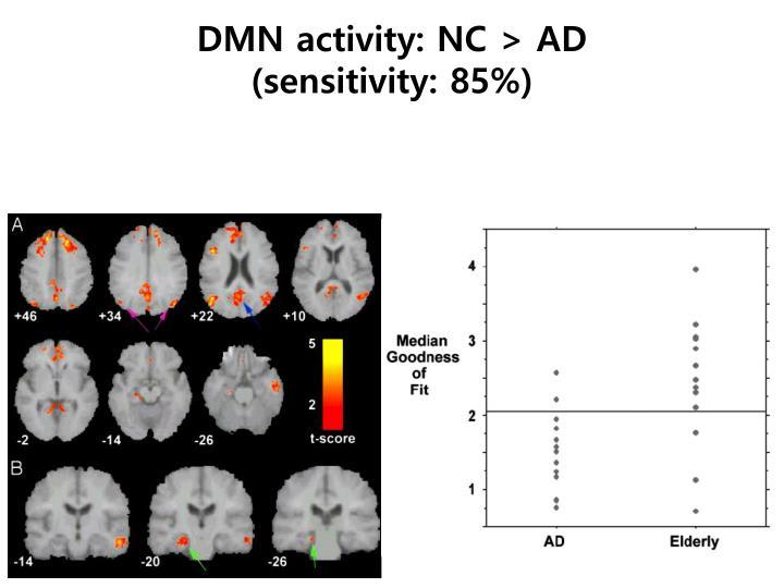 DMN activity: NC > AD