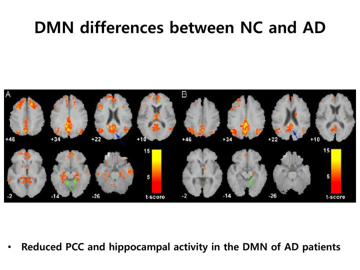 DMN differences between NC and AD