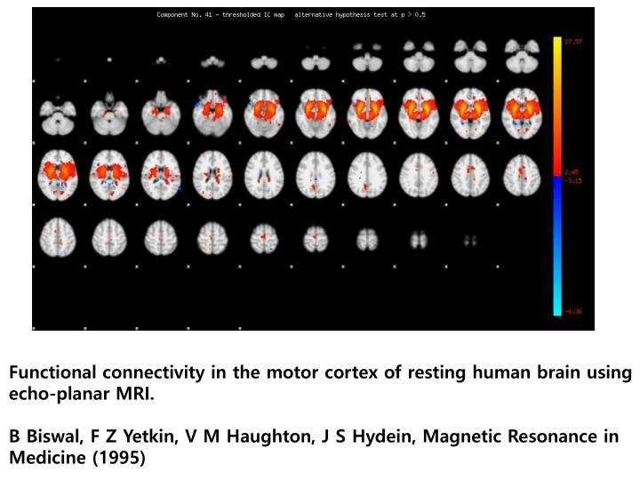 Functional connectivity in the motor cortex of resting human brain using echo-planar MRI.