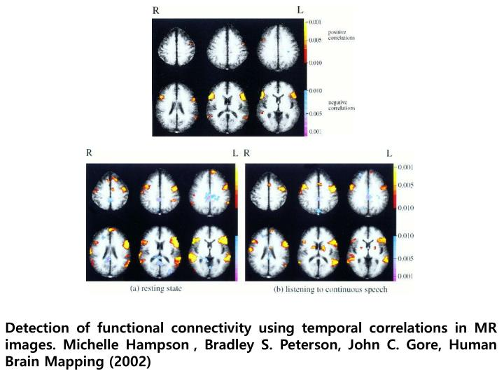Detection of functional connectivity using temporal correlations in MR images. Michelle Hampson