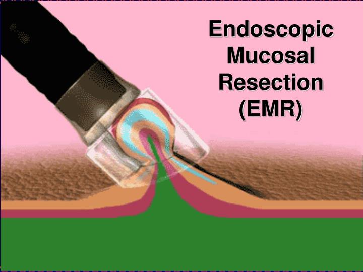 Endoscopic Mucosal Resection (EMR)