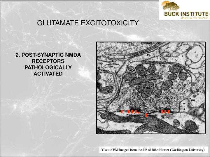 GLUTAMATE EXCITOTOXICITY