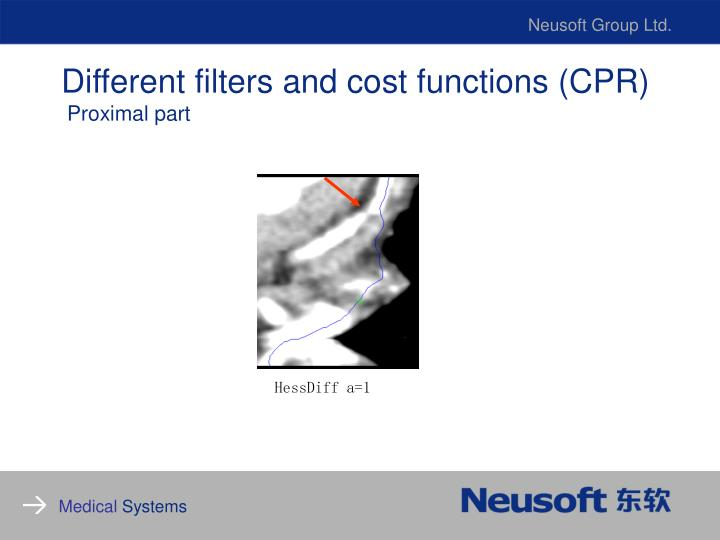 Different filters and cost functions (CPR)