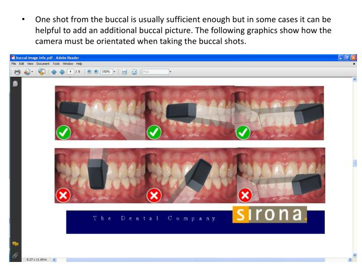 One shot from the buccal is usually sufficient enough but in some cases it can be helpful to add an additional buccal picture. The following graphics show how the camera must be orientated when taking the buccal shots.