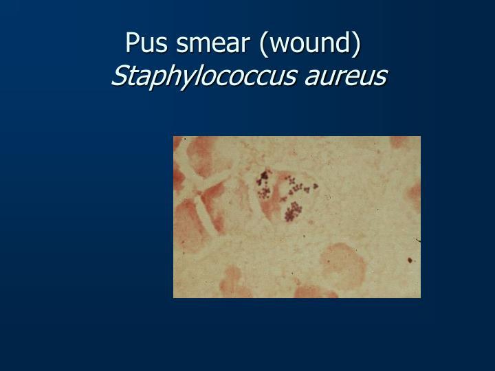 Pus smear (wound)