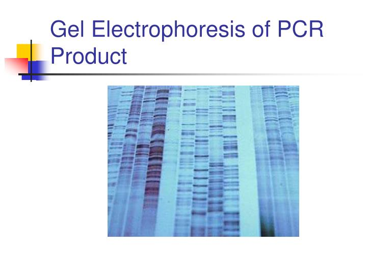 Gel Electrophoresis of PCR Product