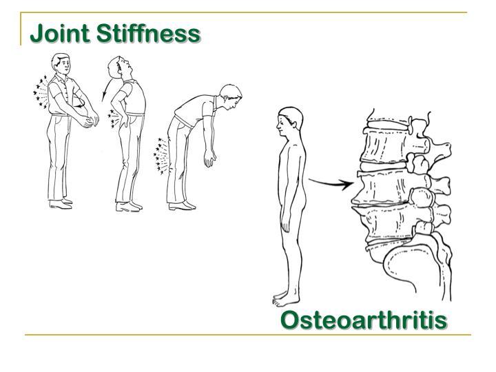 Joint Stiffness