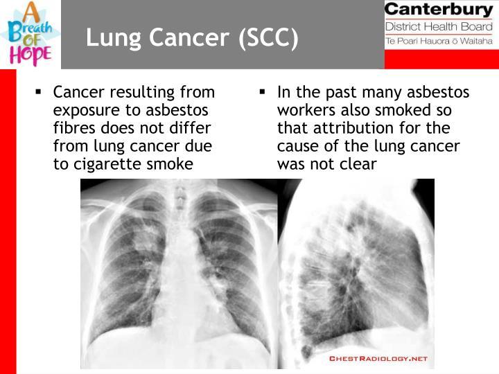 Lung Cancer (SCC)