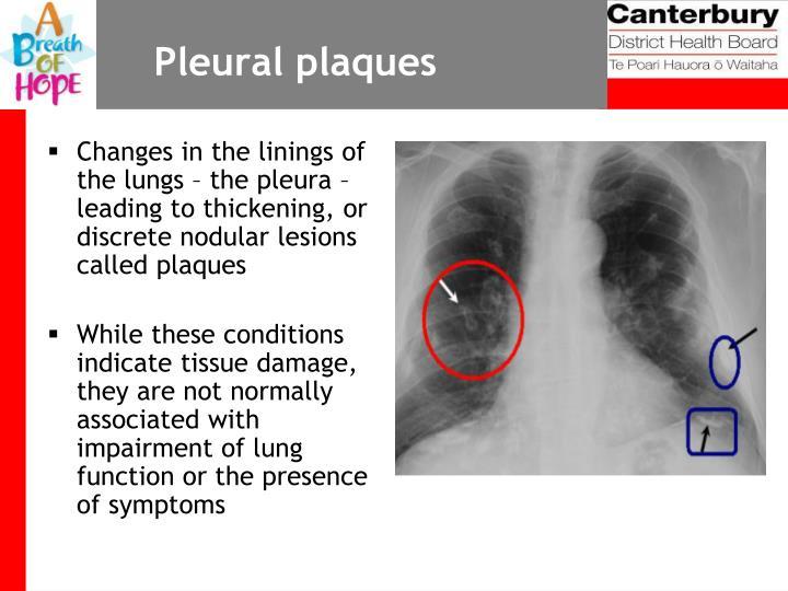 Pleural plaques