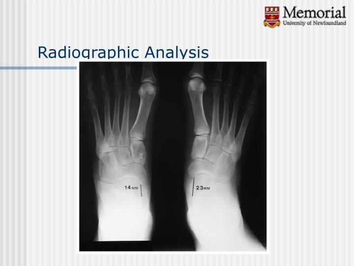 Radiographic Analysis