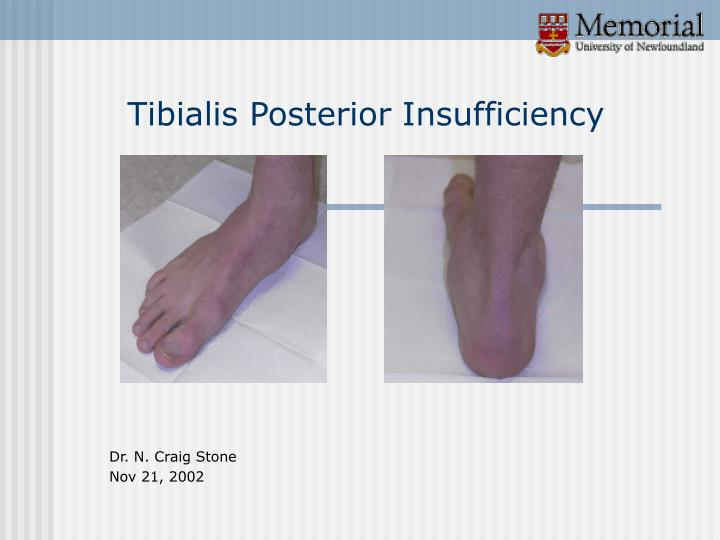 Tibialis posterior insufficiency