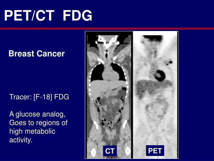 PET/CT  FDG