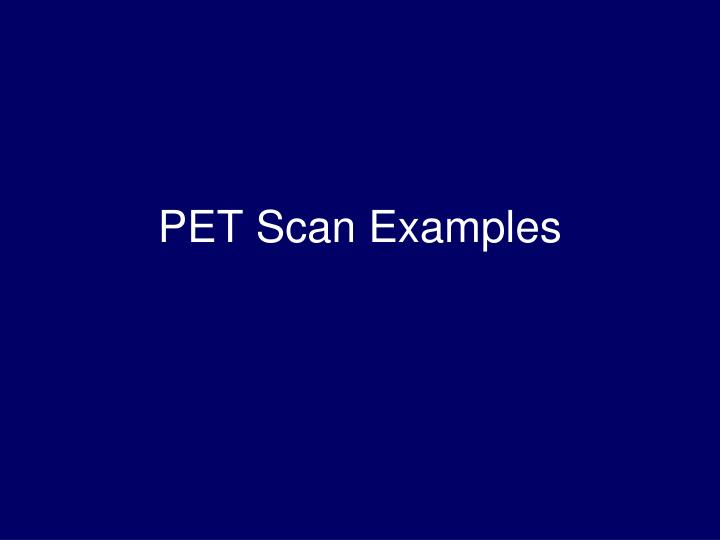 PET Scan Examples