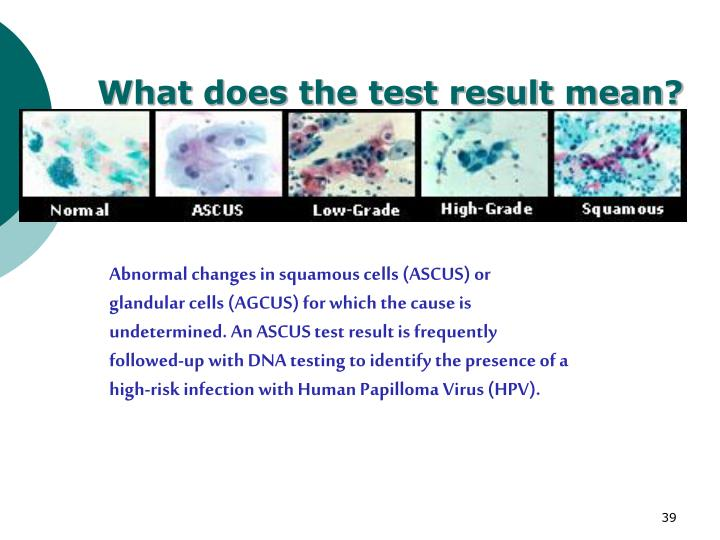 What does the test result mean?