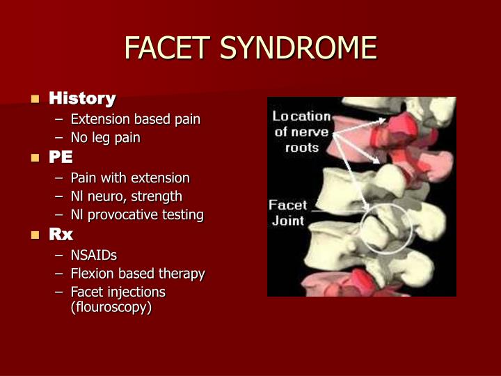 FACET SYNDROME