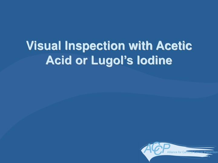 Visual Inspection with Acetic Acid or Lugol's Iodine