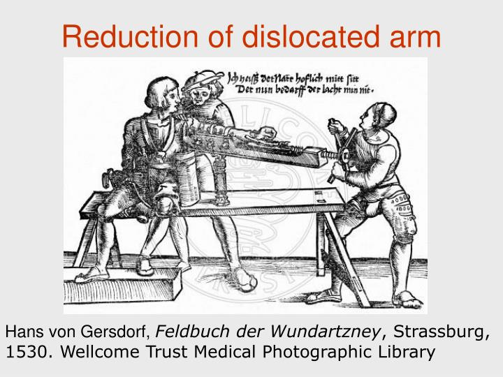 Reduction of dislocated arm
