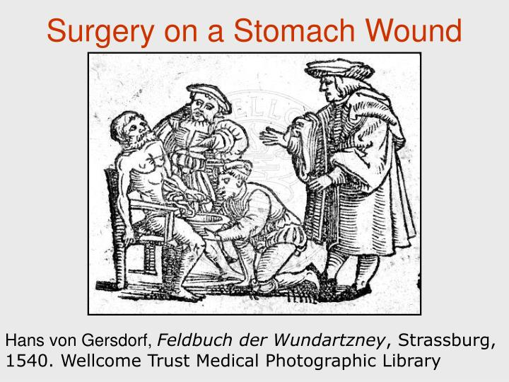 Surgery on a Stomach Wound