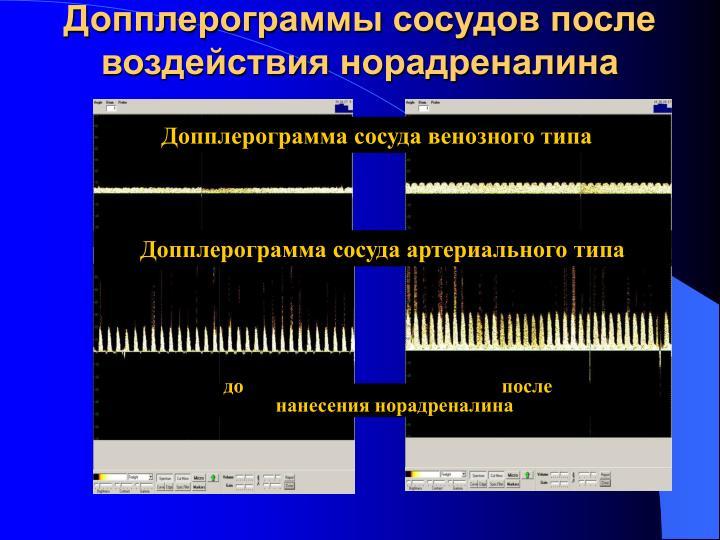 Допплерограммы сосудов после воздействия норадреналина
