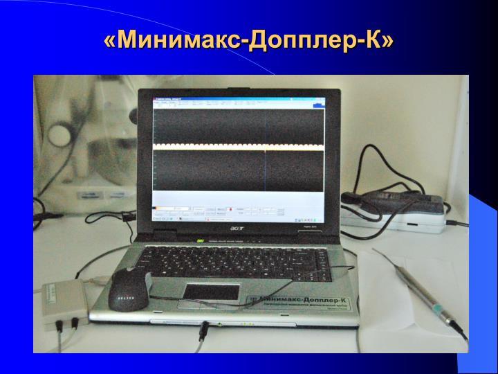 «Минимакс-Допплер-К»