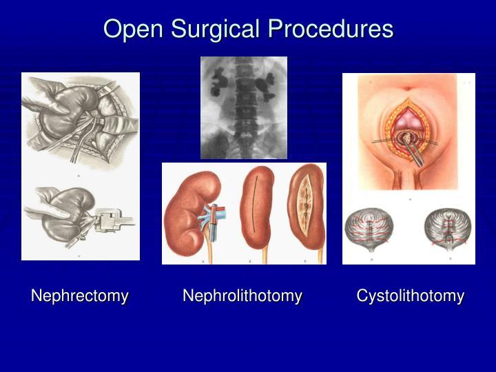 Open Surgical Procedures