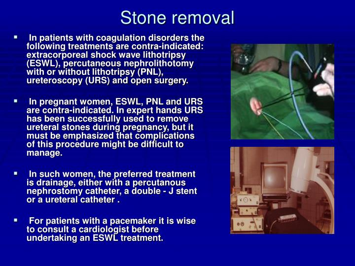 Stone removal