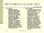 frf for smes vs u s gaap part 2