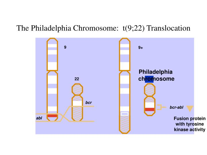 The Philadelphia Chromosome:  t(9;22) Translocation