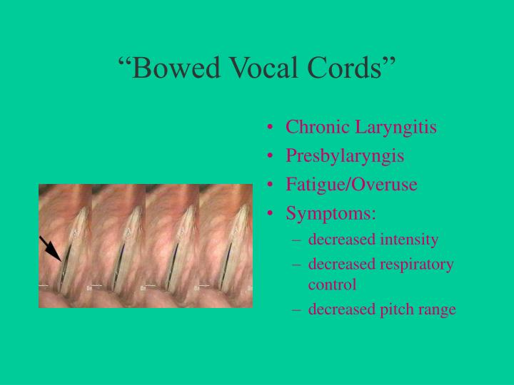 """Bowed Vocal Cords"""