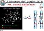 aml leucemia mieloide acuta1
