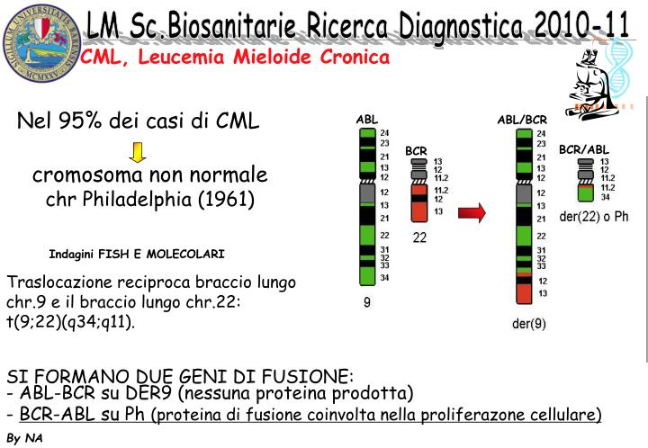 Cml leucemia mieloide cronica1