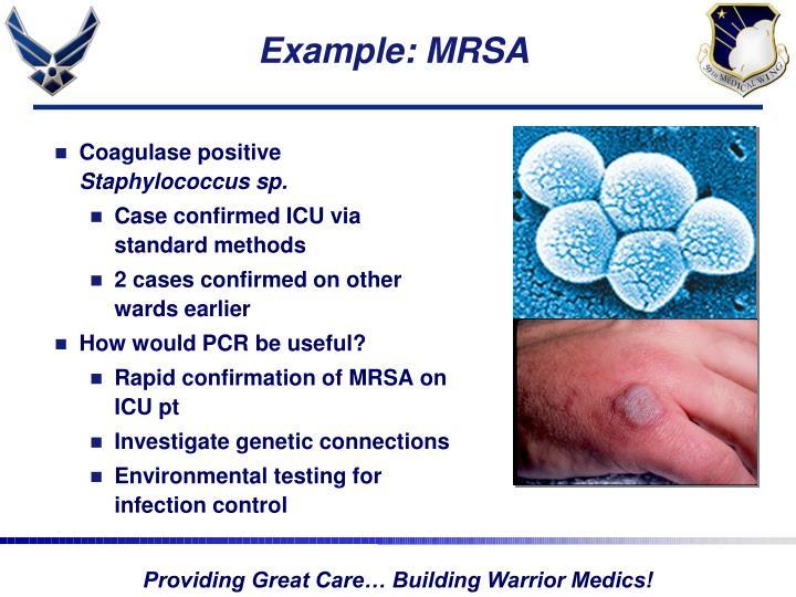 Example: MRSA