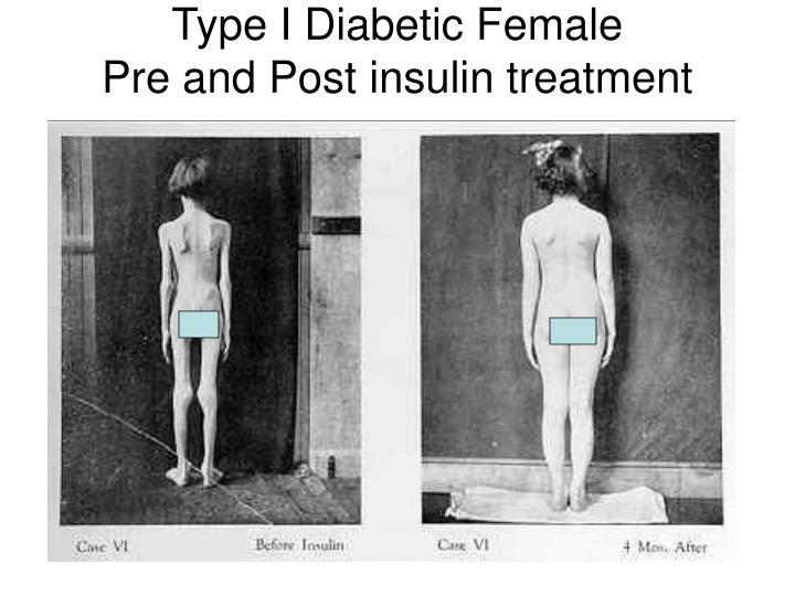 Type I Diabetic Female