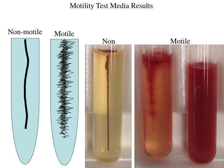 Motility Test Media Results