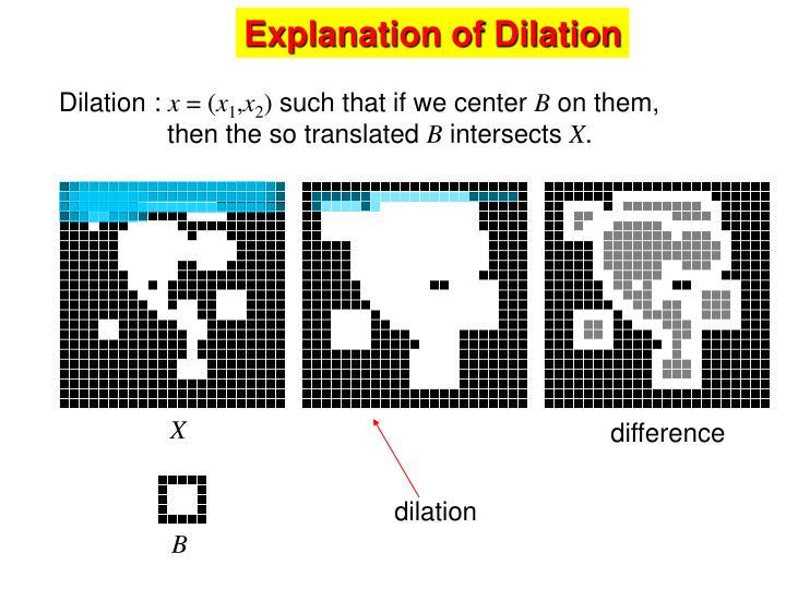 Explanation of Dilation